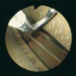 fibrescope7